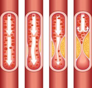 Medical Terminology Quiz: Myocardial Infarction